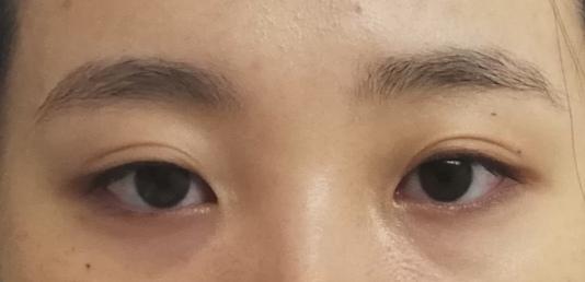 目の開きが左右対象ではないのが悩みなのですが、治す方法とか対象に見えるメイク方法とかありませんか??