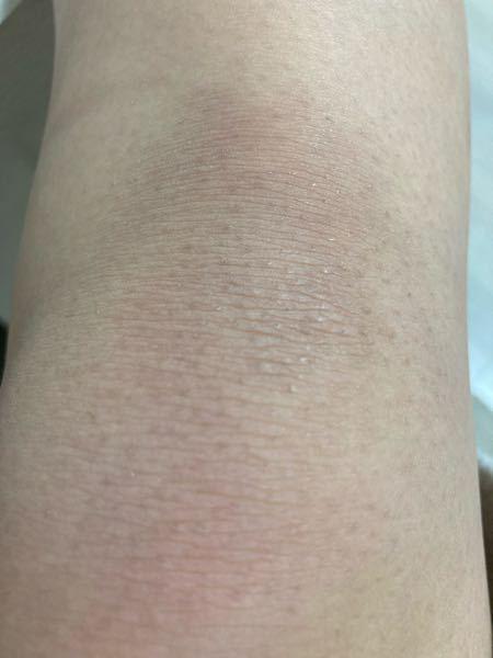 お風呂でカミソリで剃ったら、このように黒ずみが目立つんです。黒ずみをなくす方法ありますか?(脱毛以外)