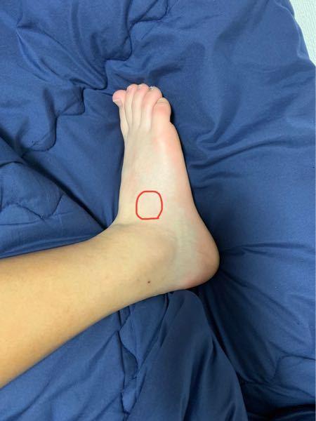 部活中に小指にかけて全体重が乗ったまま転けました。 それから1週間ちょっと経つのですが歩いても痛みます。 部活中は足裏が圧迫された感じの強い痛みとマークの部分が刺さる感じの痛みが出ます。 ジョ...