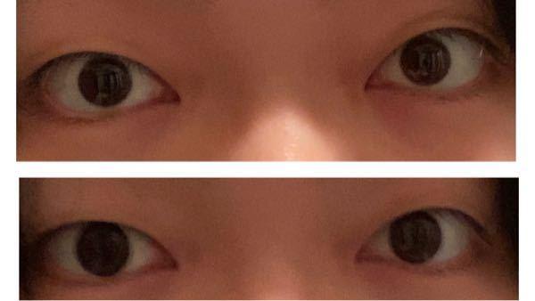 カラコンをしても全く可愛くもマシにもなれません。 写真の上が裸眼で下がカラコンした状態です。 この目は二重整形などをしたらマシになれると思いますか? 教えてください^ - ^