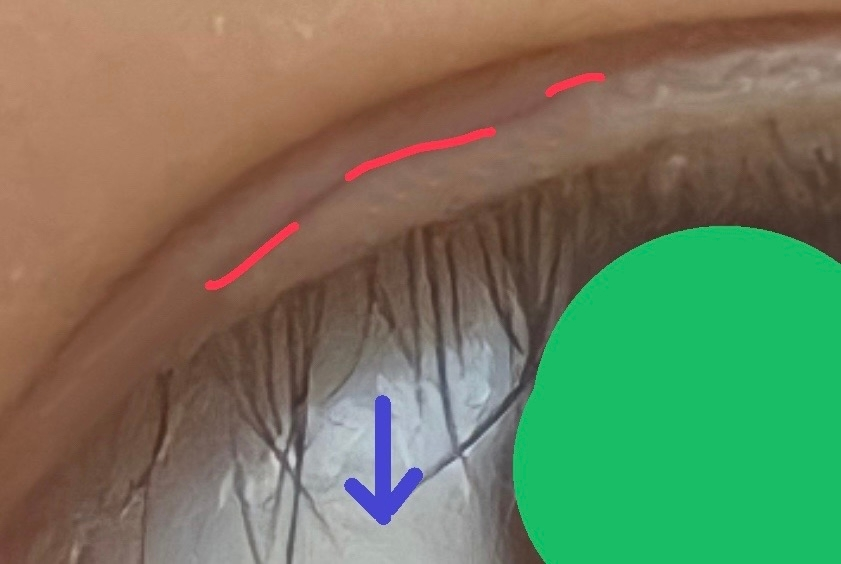 私は下の写真の赤線のように二重の間に薄い線(少し肉が乗ってる)があります。 そのせいか、線の無い目尻側は普通のまつ毛なんですが目頭側のまつ毛の生え際が線(肉)に埋もれてしまっておりまつ毛が矢印の...