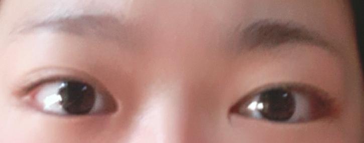 つり目ですか? あと、右目だけ奥二重なのですが、治す方法はあるのでしょうか… ご回答よろしくお願いします