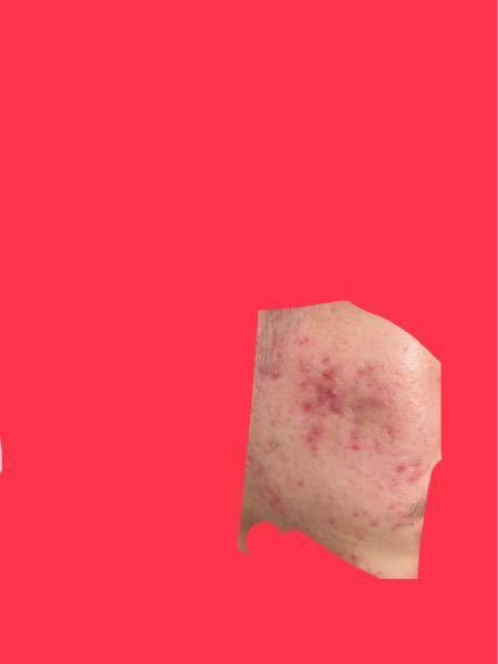 このような赤いニキビ跡はどのくらいで治りますか?今は美顔水とハトムギ化粧水とハトムギジェルで保湿した後に皮膚科でもらった薬を塗ってます