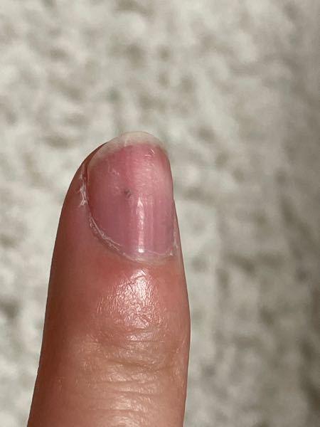 【至急】お願いします。 3時間くらい前に爪の外側からなんかアルミ片のようなものが刺さり、爪を貫通して指に刺さりました。爪の硬いところから血が出てきたので間違いありません。(写真の爪の黒い点がそれです)かなり小さなアルミ片で、刺さりきってしまい抜くこともできないのですがこのまま放置でいいのでしょうか?地味に結構痛いです。 それと、この状態にネイル(ジェルやスカルプ)はやめた方がいいでしょうか?回答よろしくお願いします。