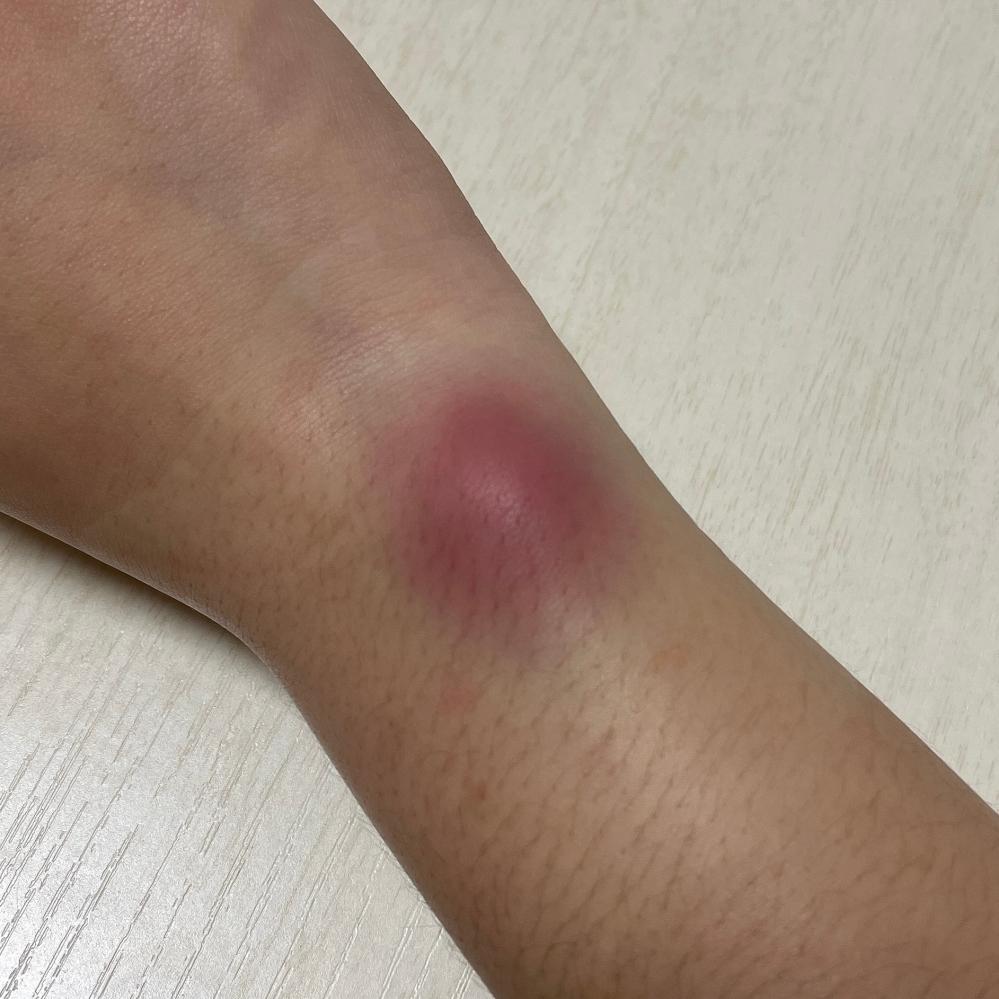 昨日恋人と喧嘩をして手首をずっと引っ張られて痛いと言っても辞めて貰えず、最初は青あざくらいだったのが数時間後には写真のように赤紫になり腫れてしまいました。動かしたり少し触れるだけでも痛いです。 ...