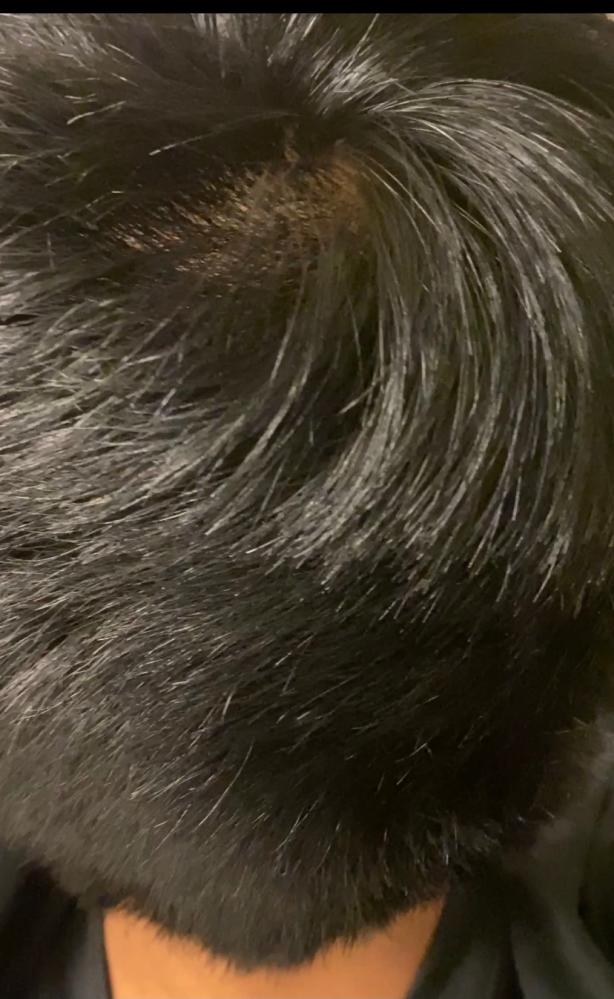 これは梳きすぎですか? 画像では伝わりにくいかもしれませんが、後頭部だけ梳かれすぎてる気がして、特に右下だけ量が少ない感じです。 美容師さんは髪の毛の量を半分にしたって言ってましたが。 考えすぎ...