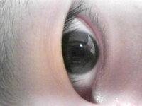 眼瞼下垂なのか皮膚が伸びてるだけなのか… 瞼が少し垂れています コンタクトはしてませんがパソコンはかなりします 中学生の頃アイプチをして いました なので眼筋が緩んでるわけではなく ただ瞼が伸びてるだけな...