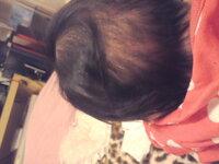髪の毛 抜ける 赤ちゃん