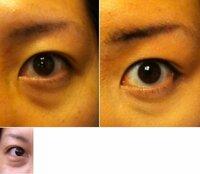 目の下の窪み(クマ?シミ?)を消す方法又はメイク 現在30歳女性です。 小さい頃より、目の下の青クマ(窪みや膨らみとも言えます)のようなものがあります。 (2歳の頃の写真にすでにありました)  寝不足...