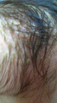 赤ちゃんの頭皮にかさぶたのようなものがついています。保健師さんや皮膚科の先生には、ベビーオイルを染み込ませてシャンプーしたら自然にと れると言われました。 実際とれてきているのですが、髪の毛までとれ...